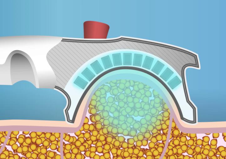 Cryode du CryoSlim en état de fonctionnement lors d'un traitement de cryolipolyse